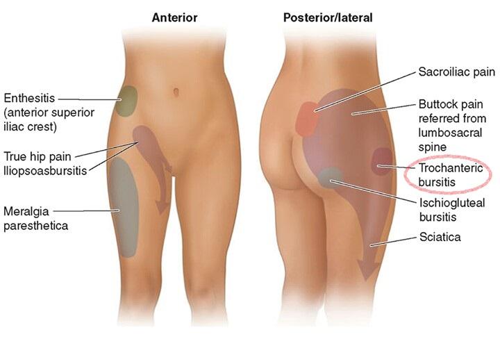 dor na perna após a coluna lombar