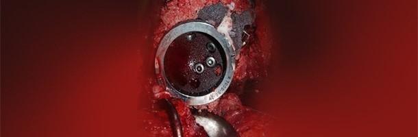 Artigos de revisao cirurgia